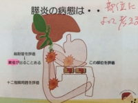 膵臓部位.JPG