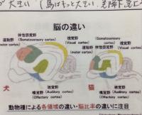 脳の違い.JPG